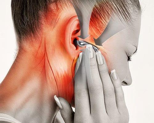 Fique atento à Disfunção Temporomandibular!